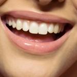 sourire assurance pret